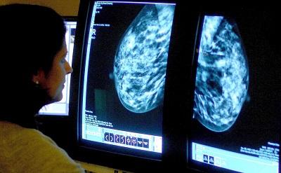 Хозяйке на заметку: памятка про BRCA и другие гены